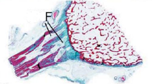 patellar tendon enthesis The role of bone sialoprotein in the tendon-bone role of bone sialoprotein in the tendon figure 25 bsp-/ mice exhibit alteration in patellar enthesis.